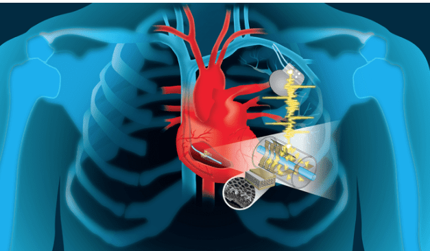 New Implant Powers Cyborg Devices Using Your Heartbeat